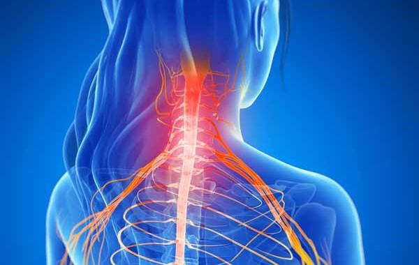 cervical neurology